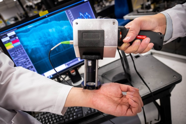 Handheld medical imaging device spots first signs of cancer